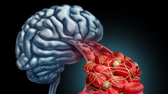 Blood clot and the brain