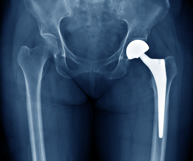 Xray of a hip implant