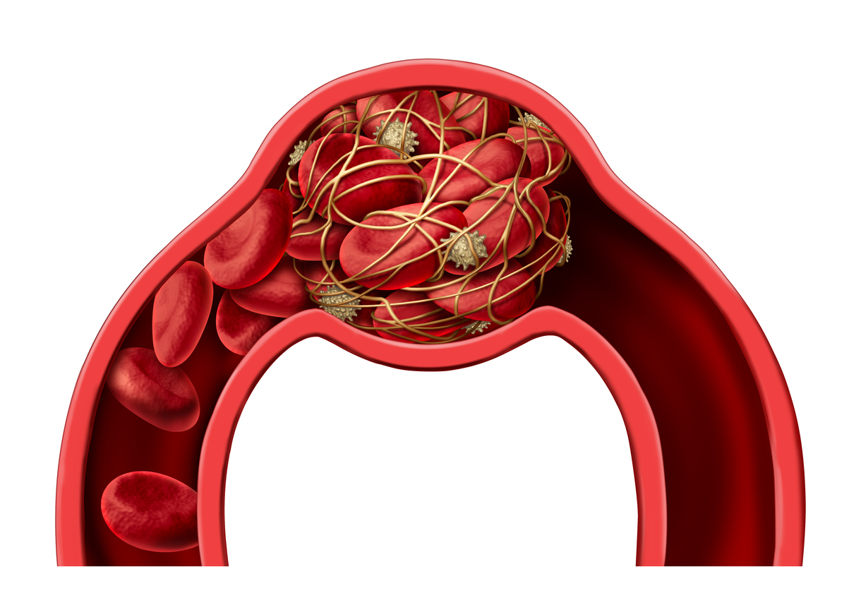 3D illustration of blood clot disease