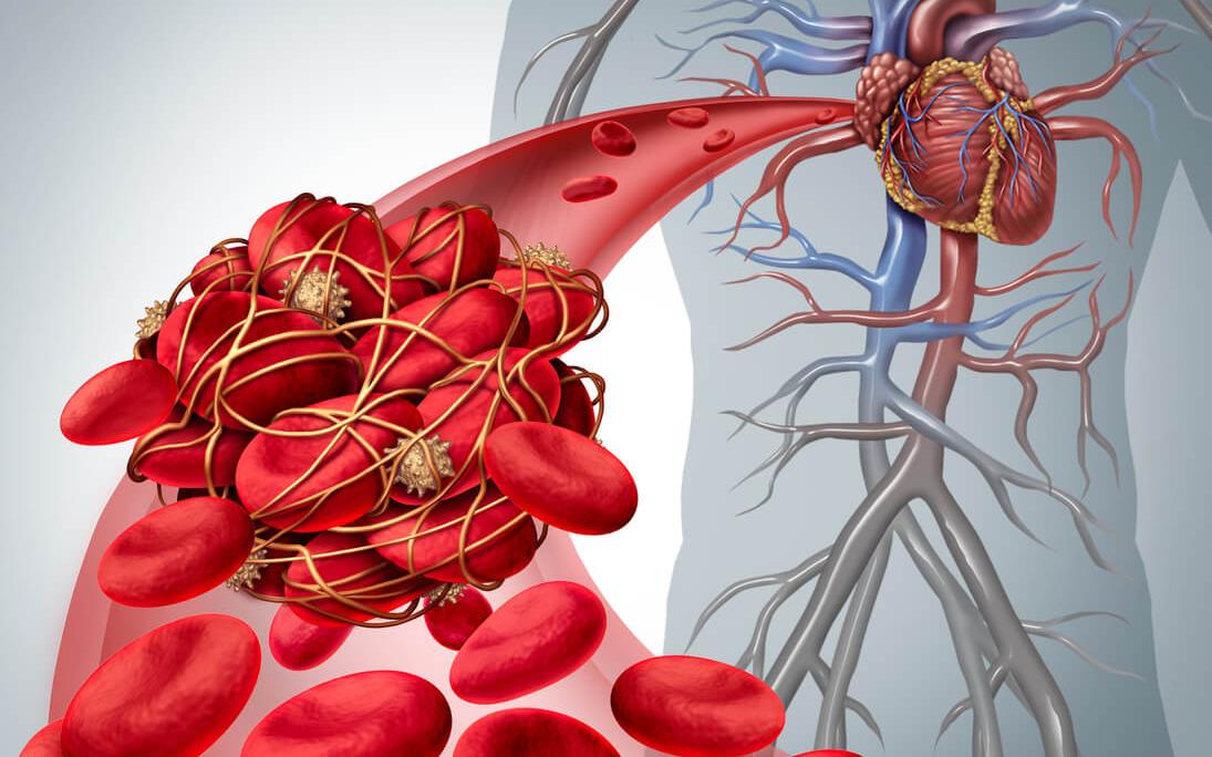 illustration of blood clot