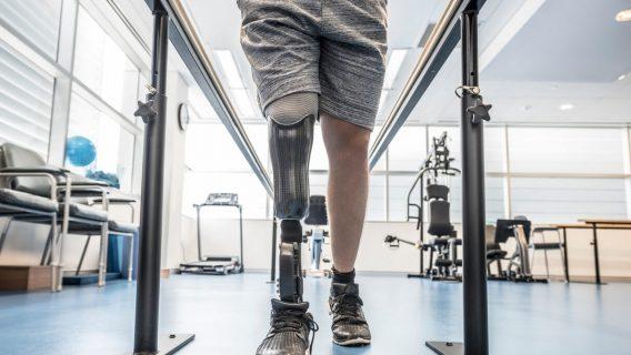 Lawsuits Blame Diabetes Drug Invokana for Amputations