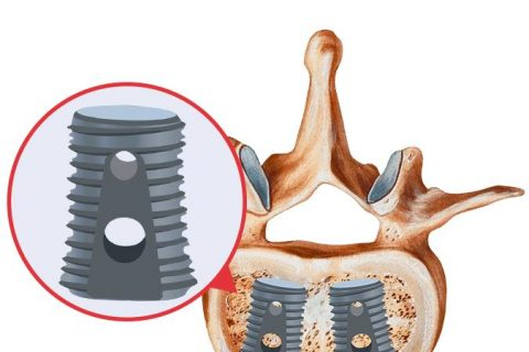 Infuse Bone Graph Implant