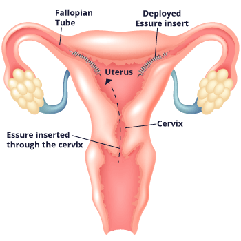 Diagram of How Essure is Inserted