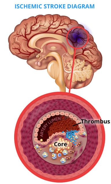 Ischemic Stroke Occur in the Thrombus