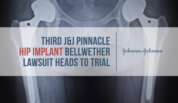 Third J Amp J Pinnacle Hip Implant Bellwether Lawsuit Heads To