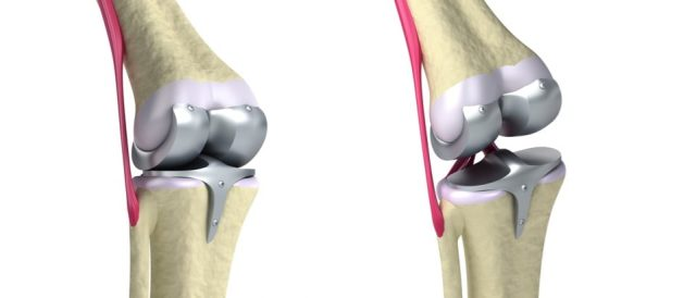 knee replacement recall