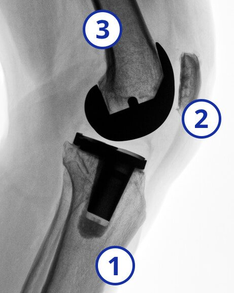 Knee replacement x-ray with femur, patella, tibia numbered