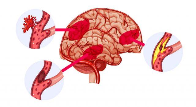 Lemtrada stroke illustration