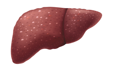 Illustration of liver failure.