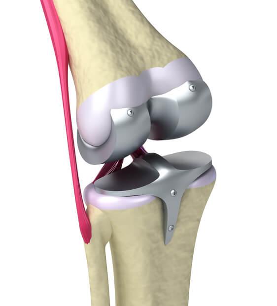 Medial Knee