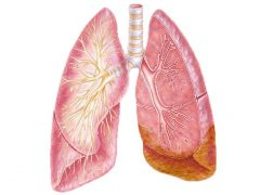 Illustration of lungs with mesothelioma