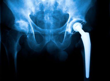 metal-on-metal hip implant