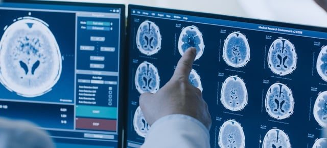 Doctors examine brain x-rays