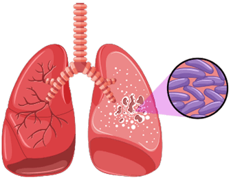 Mycobacteria Illustration