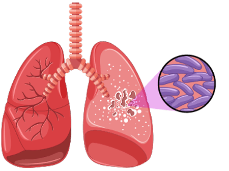 Mycobacteria Illustration