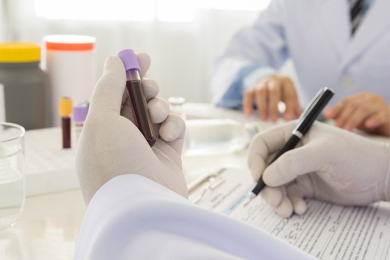 gloved hand holding a blood sample and documenting it
