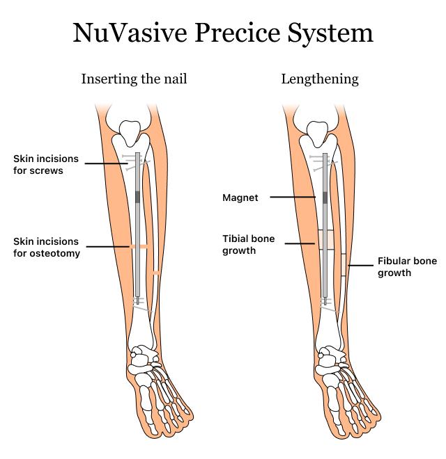 Graphic showing how NuVasive's Precice system treats limb length discrepancies