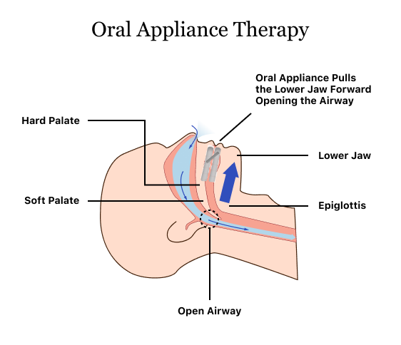 Oral Appliance Therapy Device