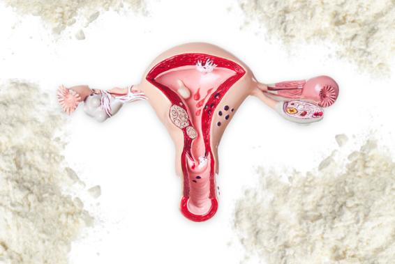 Supplier Settles Talcum Powder Ovarian Cancer Lawsuits