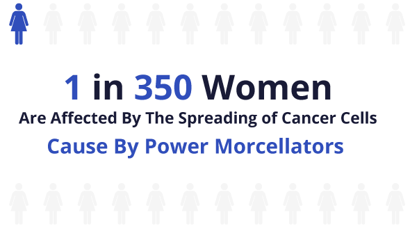 1 in 350 women are affected by the spreading of cancer cells caused by power morcellators