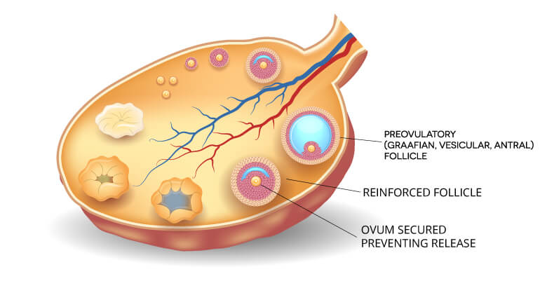 Diagram showing the prevention of ovulation