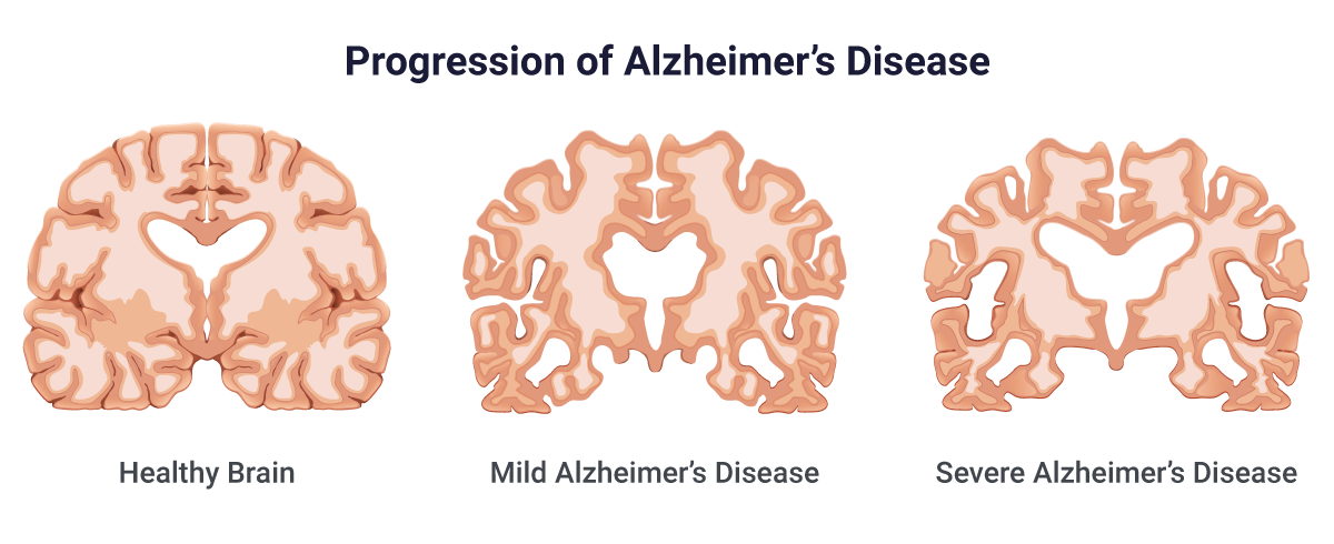 Alzheimer's Disease: Causes, Stages, Symptoms & Prevention