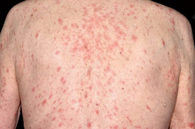 Skin rash on a person's back