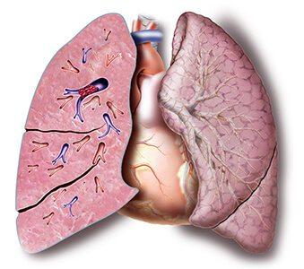 Pulmonary Artery Blocked by an Embolus