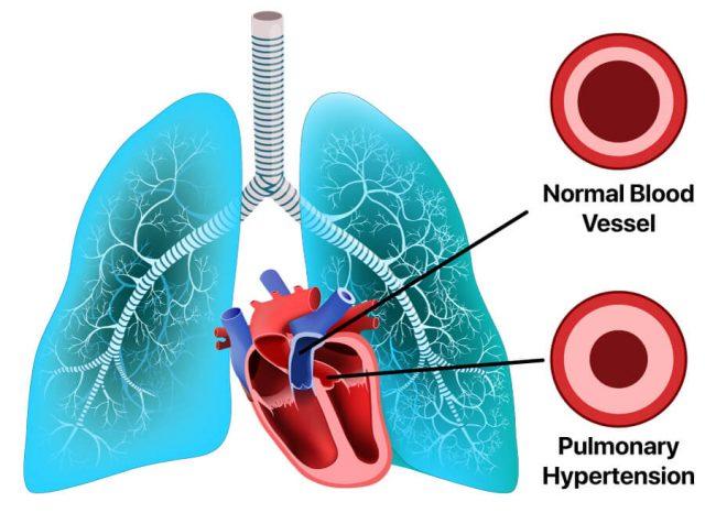 pulmonary hypertension illustration