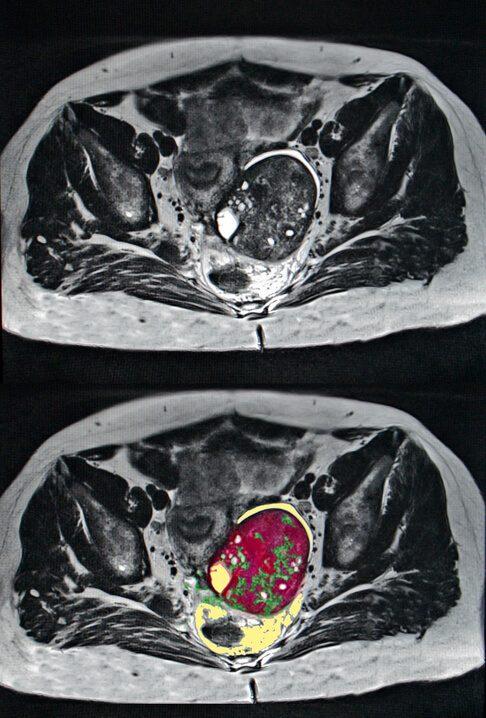 Ovarian cancer scan