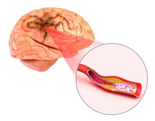 Stroke Impact on the Brain