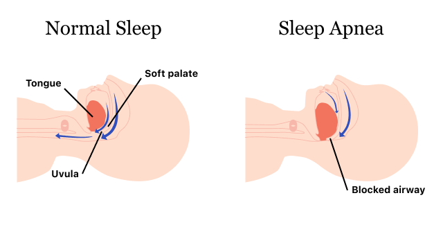 Graphic showing the mouth in normal sleep versus sleep apnea
