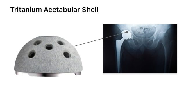 Stryker hip implant