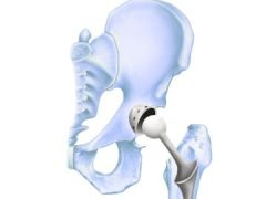 Stryker hip replacement