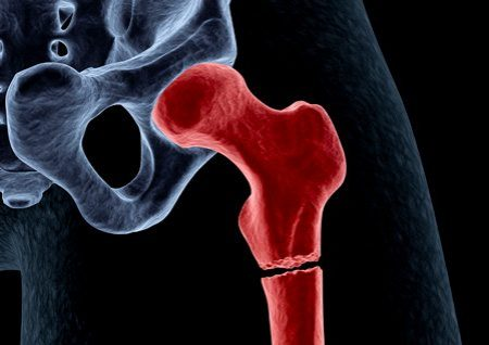 Bone Fracture X-Ray