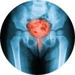stress urinary incontinence icon