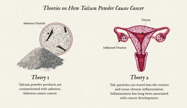 Diagram showing popular theories on how talcum powder causes cancer