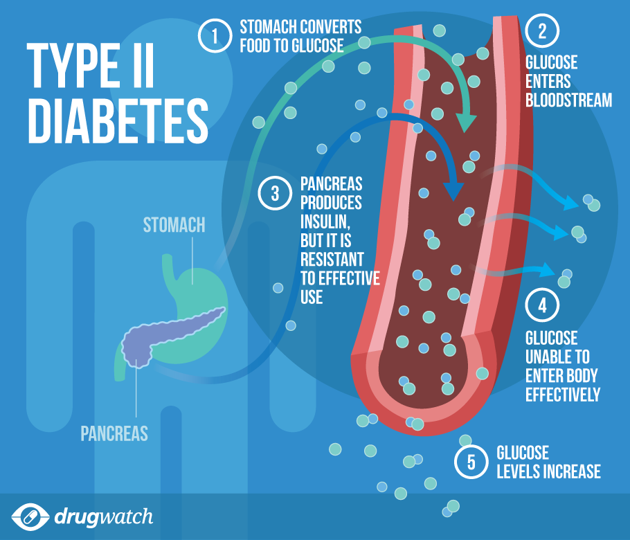 With Type 2 diabetes, your body can't produce enough insulin to
