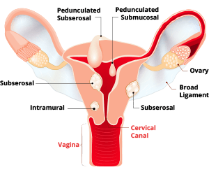 Diagram of Uterine Fibroid Types