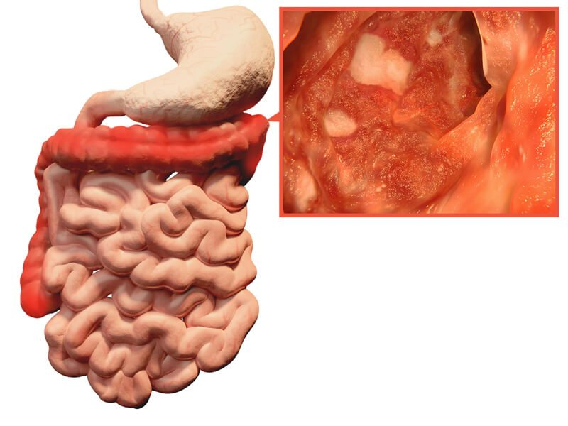 Ulcerative Colitis up close view