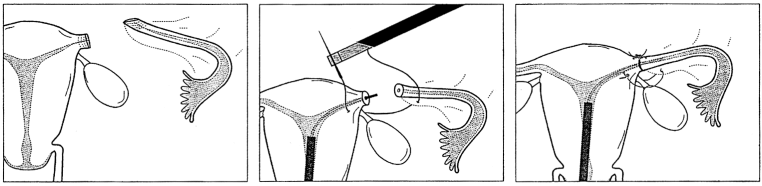 Removing Essure via Uterine Preserving Surgery