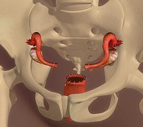 Vaginal Hysterectomy Surgery