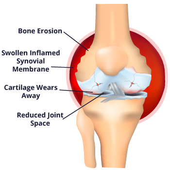 Rheumatoid Arthritis and its effect on your body