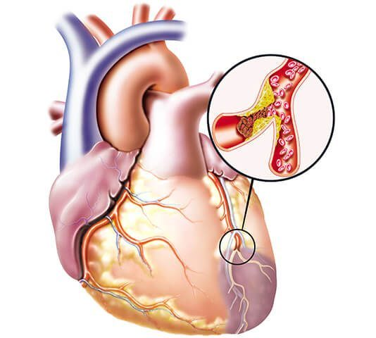 Thrombus Formation in the Heart