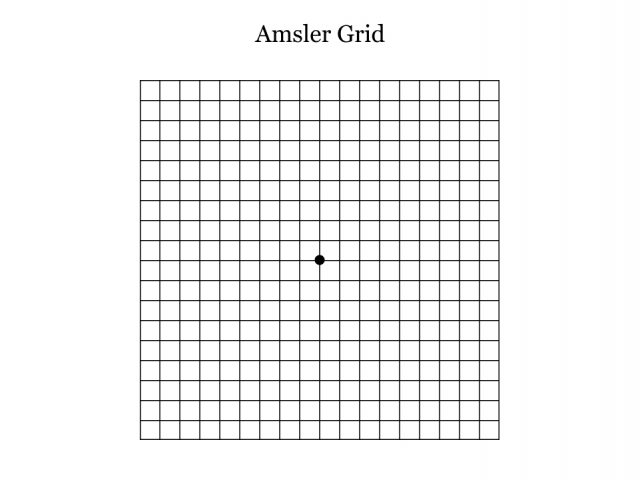 Amsler Grid that helps determine vision problems