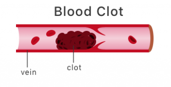 Illustration of blood clot.
