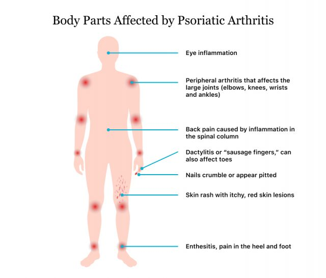 Body Parts Affected by Psoriatic Arthritis