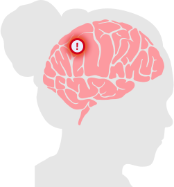 Brain Tumor Diagram