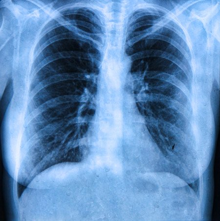 X-ray of lungs with Cystic Fibrosis