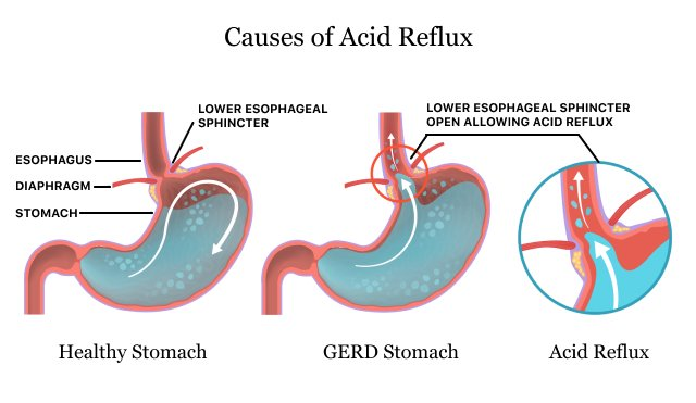 xCauses of Acid Reflux.jpg.pagespeed.ic.kh2 JK4wYp - Acid Reflux & Gerd | Symptoms, Causes & Treatment Options